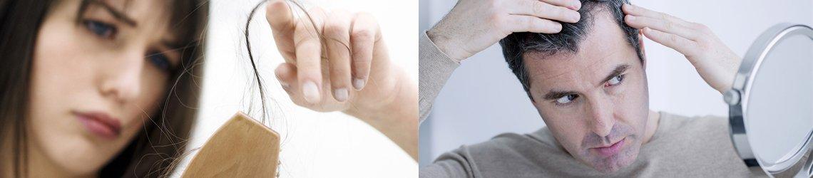 alopecia-androgenetica-zaragoza