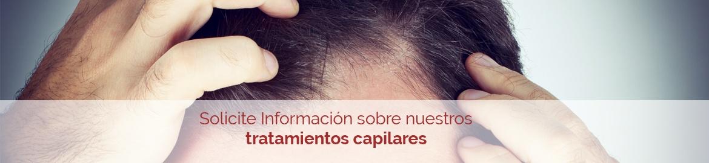 alopecia-hombre-call-action