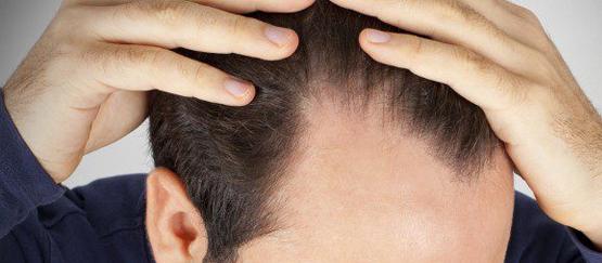 tratamiento-caida-pelo-zaragoza