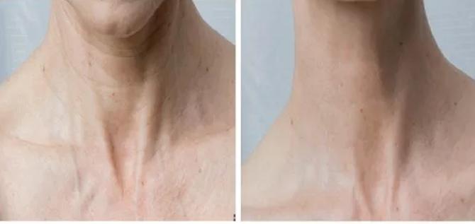 tratamiento-cuello-mesoterapia-zaragoza