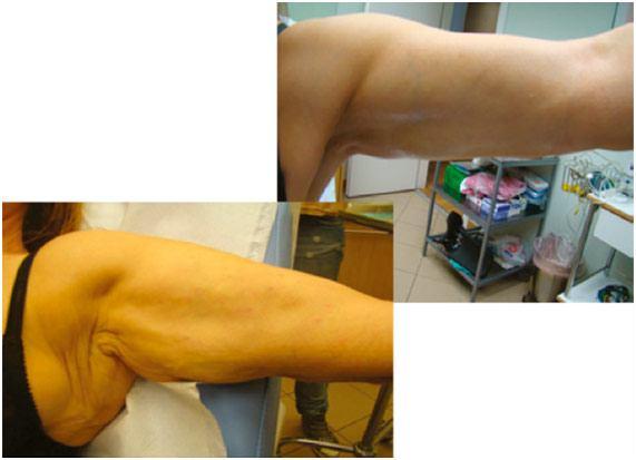 Tratamiento-en-el-brazo-con-hilos-tensores-corporales