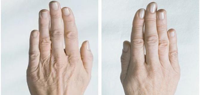 tratamiento-mesoterapia-manos-zaragoza