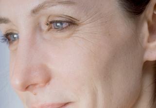 Mesoterapia facial (el antes)