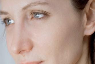 mesoterapia facial (el después)