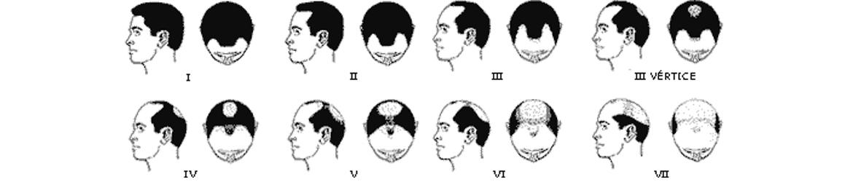 tipos-alopecia-androgenetica-zaragoza