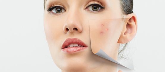 tratamiento-peeling-facial