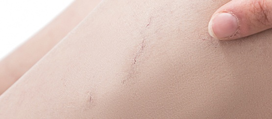 tratamiento-esclerosis-de-varices