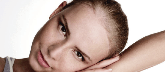 tratamientos-alopecia-androgenica-femenina-zaragoza